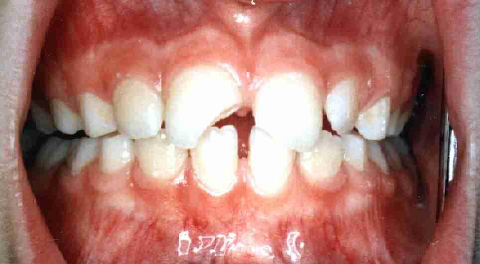 11 Zahnfraktur III.Grades